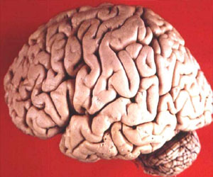 Human brain photo by John A Beal