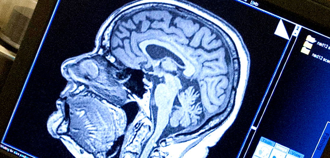 MRI creates magnetic field around the persons to capture detailed images. MRI  scan technique is based on the principles of magnetic resonance.