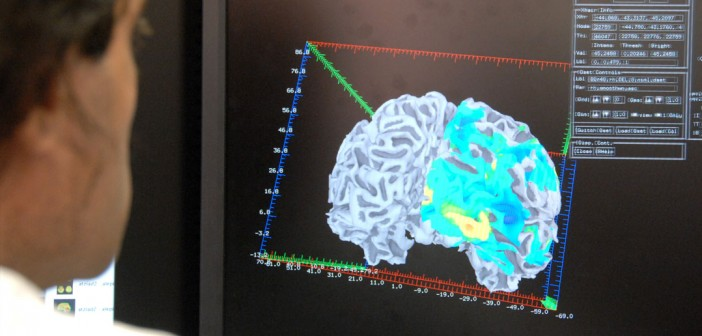 Brain scans could help doctors predict adolescents' problem drug use before it starts