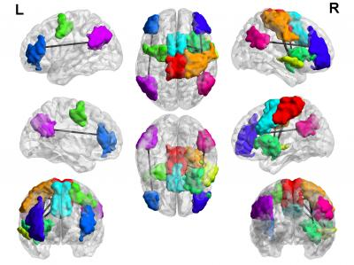 A new study led by the University of Utah School of Medicine and Chung-Ang University provides evidence that several regions of the brain are hyperconnected in adolescent boys diagnosed with Internet gaming disorder (lines between colored areas, colored areas represent specific brain networks). Some of the changes may help game players respond to new information, others are associated with distractibility and poor impulse control. (Credit: Jeffrey Anderson)
