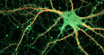 Study identifies brain cells involved in Pavlovian response