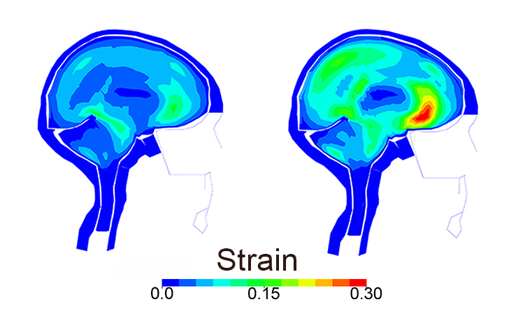 The image on the right indicates the level of strain on brain tissue after an actual bike crash; the image on the left shows what the strain would have been if a helmet was worn. (Image: KTH Royal Institute of Technology)