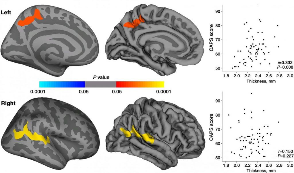 Maps of statistically significant cortical thickness differences between patients with PTSD and healthy survivors and of relationships between CAPS scores and cortical thickness in regions where significant cortical thickness changes were observed in patients with PTSD. Clusters of significantly increased cortical thickness were projected onto the inflated surface of the hemisphere. The first row shows the cluster located in the left precuneus, and second row shows the cluster located in right superior temporal gyrus extending to the inferior parietal lobule. Scatter plots show the averaged cortical thickness within the significant clusters and CAPS scores for patients with PTSD.