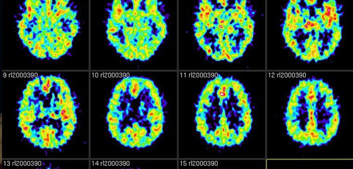 Air pollution exposure may increase risk of dementia