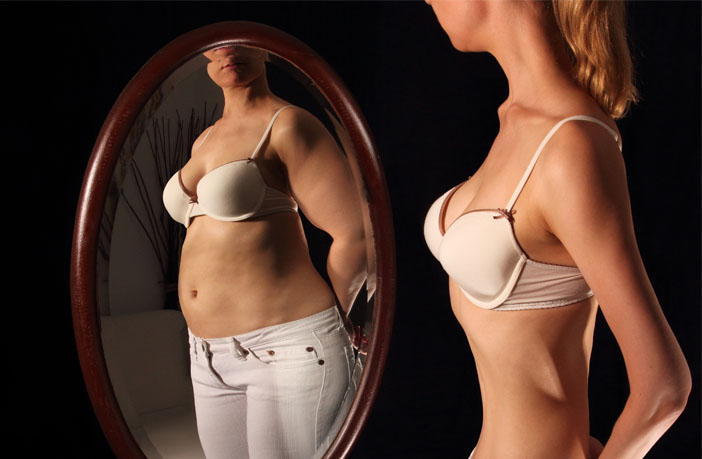 Search for pictures of anorexia nervosa