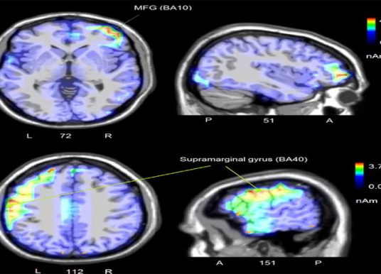 EEG study finds the human brain is deeply sexist when it comes to processing sentences
