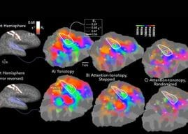 Selecting sounds: Imaging study reveals how the brain knows what to listen to