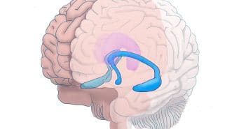 Problematic alcohol use linked to reduced hippocampal volume