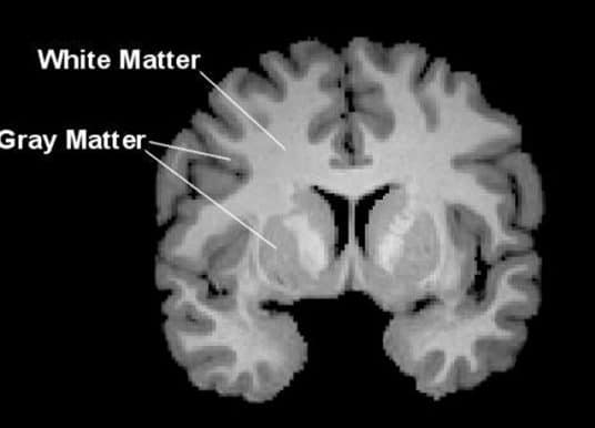 White matter alterations found in brains of college athletes after single football season