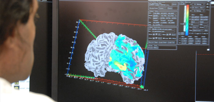 Advanced MRI scans could help predict people at risk of schizophrenia
