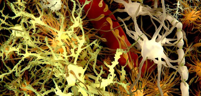 Slowdown of brain's waste removal system could drive Alzheimer's