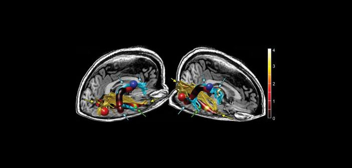 Stanford study finds brain abnormalities in chronic fatigue patients