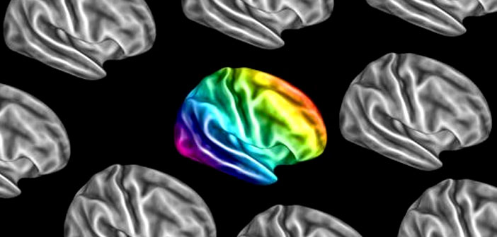 Autistic brains go their own way: Study examines brain connectivity in autism