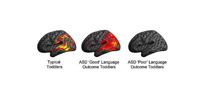 Brain imaging explains reason for good and poor language outcomes in ASD toddlers