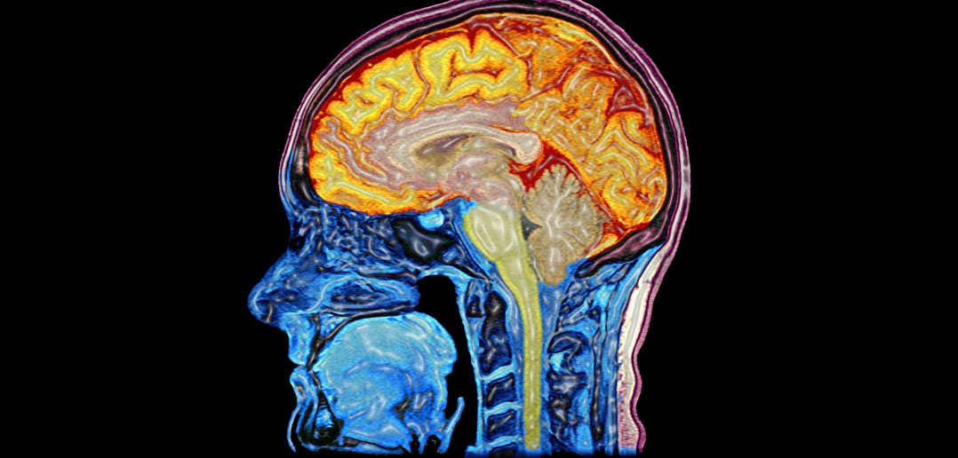 Study identifies brain abnormalities in people with schizophrenia
