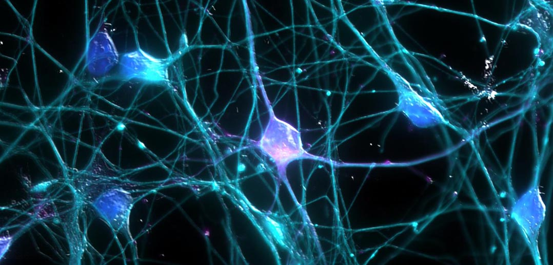 The brain's gardeners: Immune cells 'prune' connections between neurons