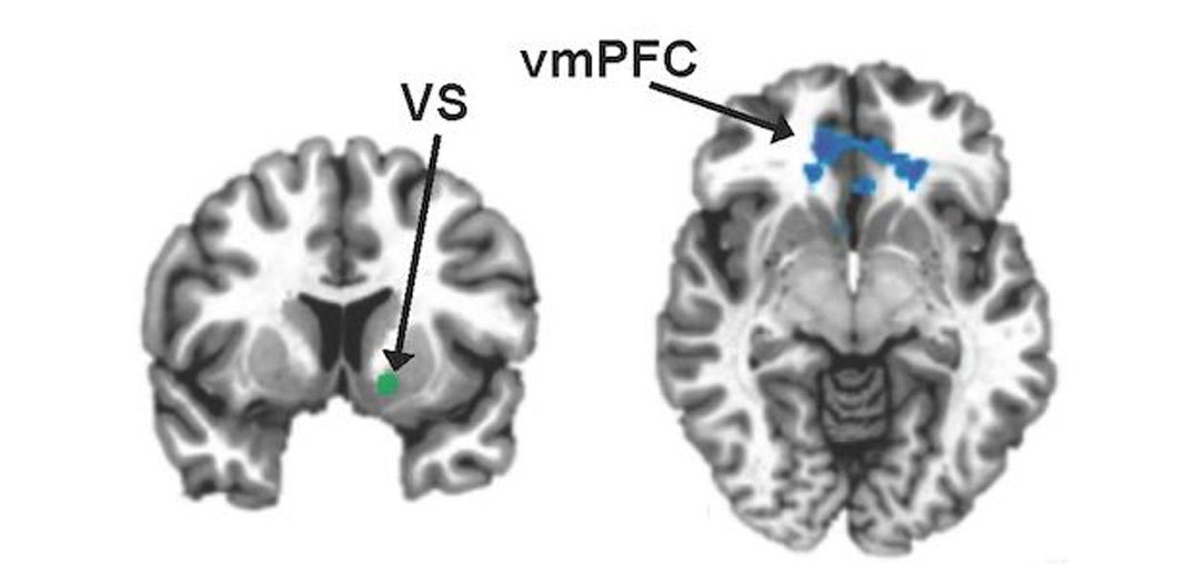 Inflammation linked to weakened reward circuits in depression ccuart Image collections