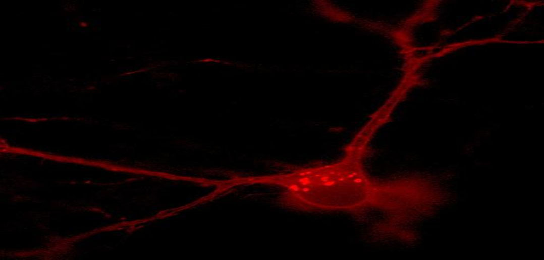The fluorescence of neuroscience demonstrates pathways of neurological disorders