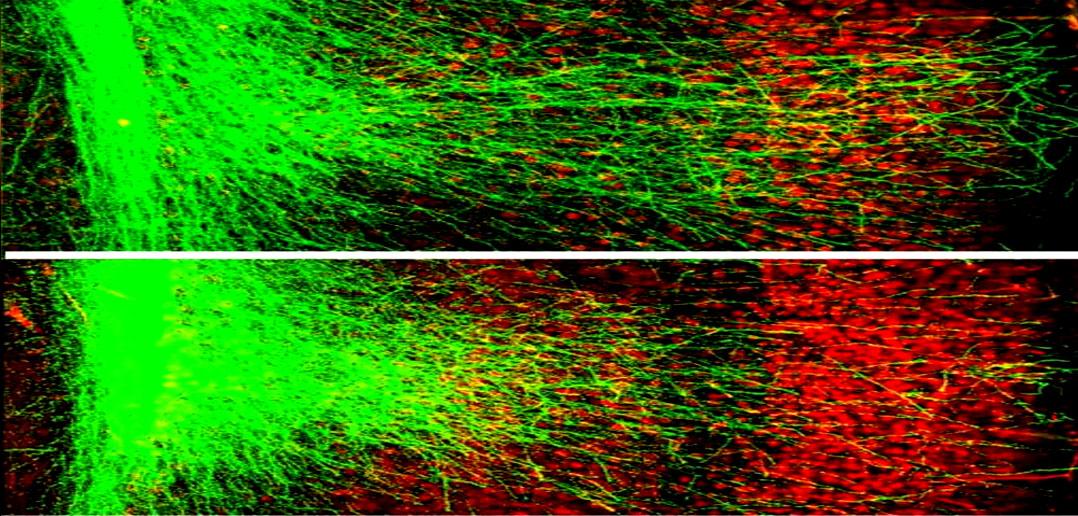 Scientists eliminate core symptom of schizophrenia in mice
