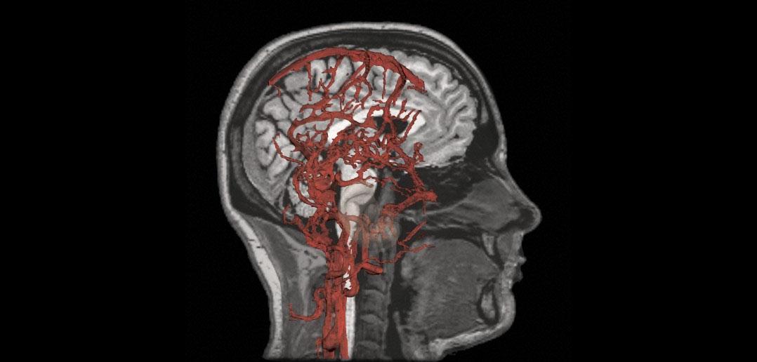 Arterial non invasive flow study