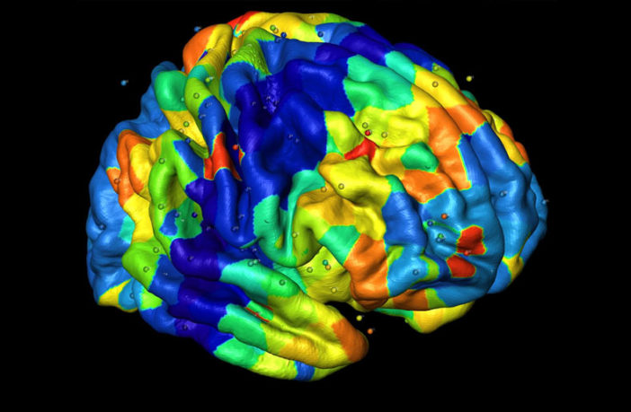 Brain scans may help clinicians choose talk therapy or medication treatment for depression