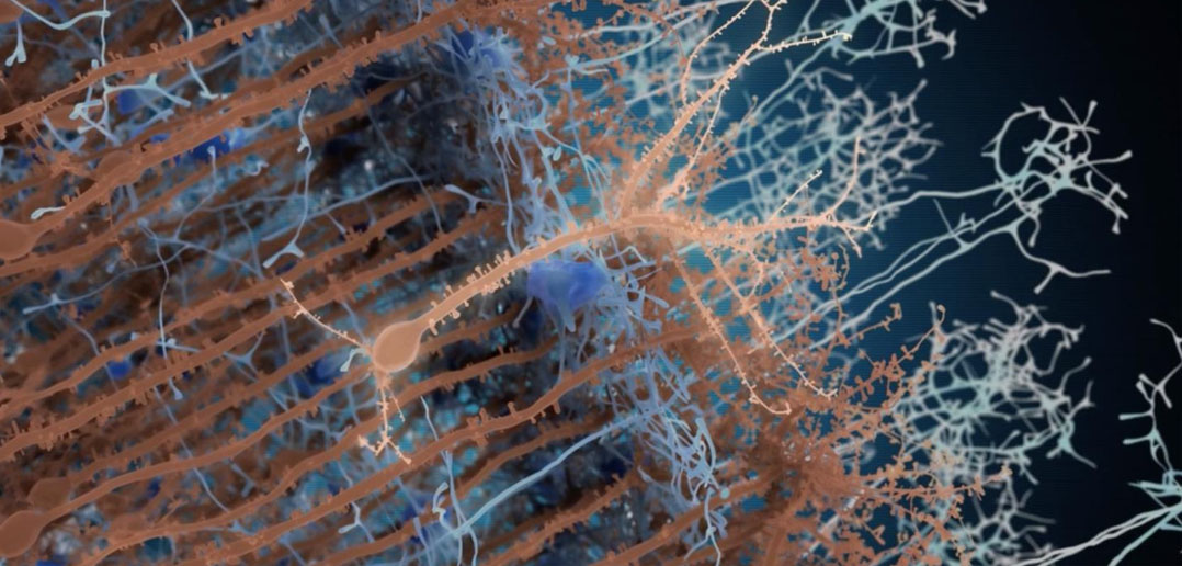 Targeting Parkinson's-linked protein could neutralize 2 of the disease's causes