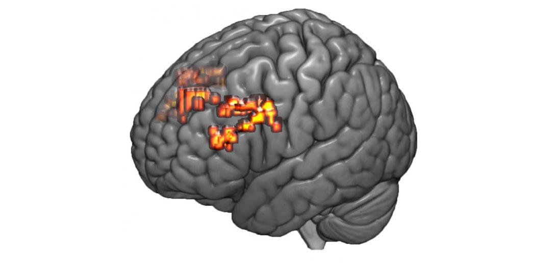 Brain scan study suggests mental math exercises could boost ...