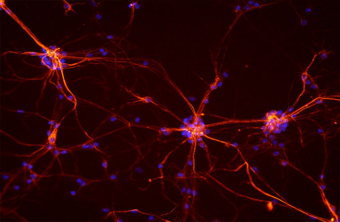 Alzheimer's may be linked to defective brain cells spreading disease