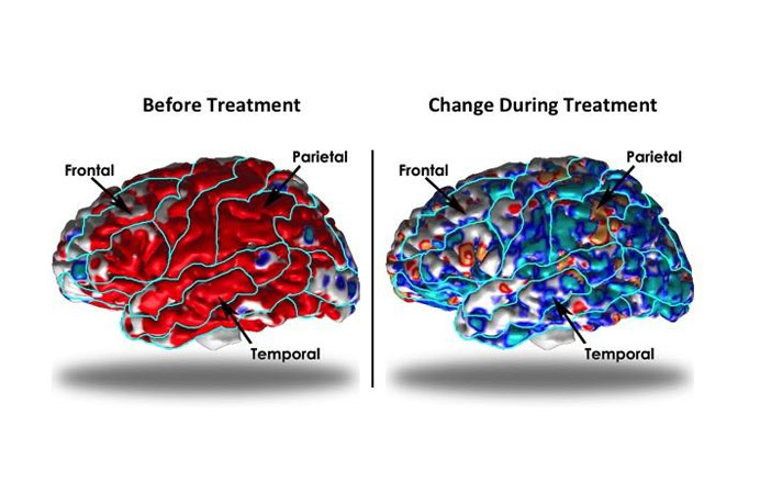 Study finds brain architecture alters to compensate for depression