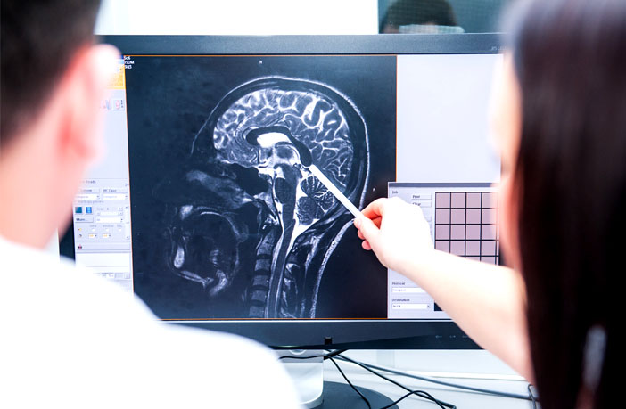 Neuroimaging study uncovers brain abnormalities linked to suicide attempts